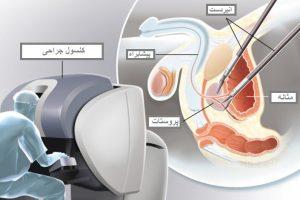 پروستات انواع روش های جراحی پروستات و عوارض آن ها