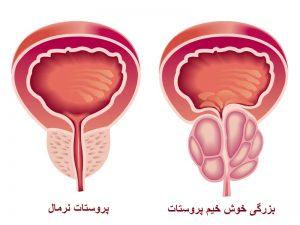 پروستات چیست؟